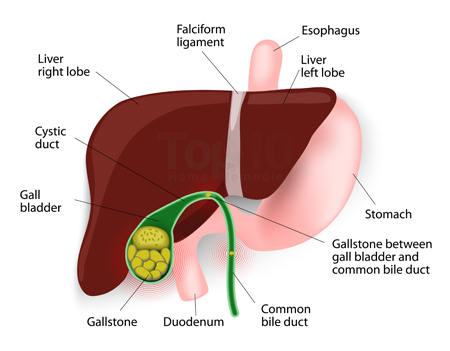 gallstones diagram