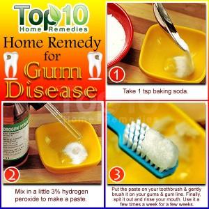 gum disease home remedy