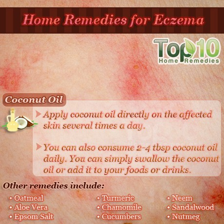 Home Remedies for Eczema | Top 10 Home Remedies