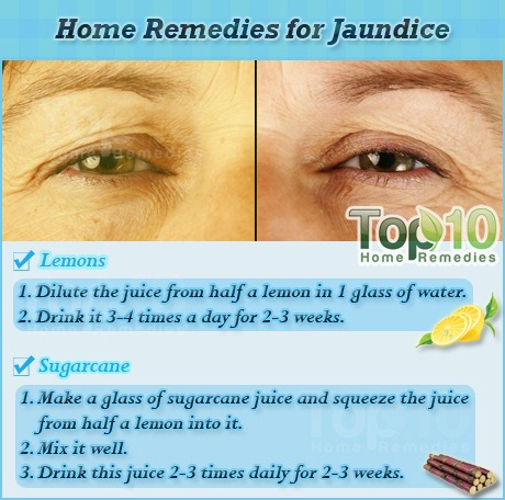 Home Remedies For Jaundice Top Home Remedies - Best home remedies for jaundice its causes and symptoms