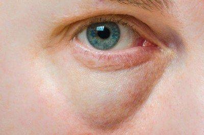 puffy-eyes