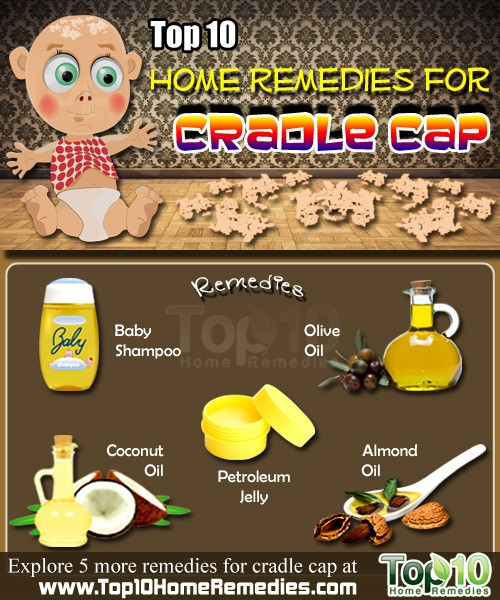 Home Remedies For Cradle Cap Top 10 Home Remedies