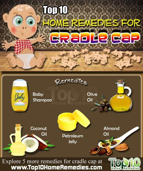 home remedies for cradle cap