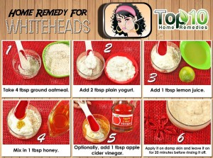 Whiteheads home remedy