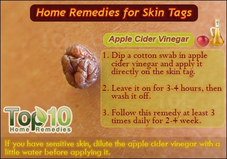Home Remedies For Skin Tags Top 10 Home Remedies