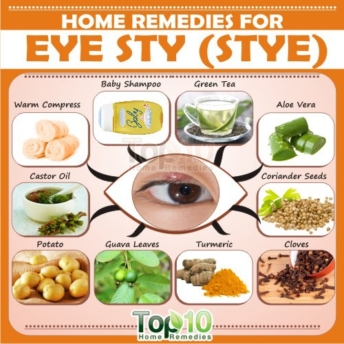 home remedies for eye sty