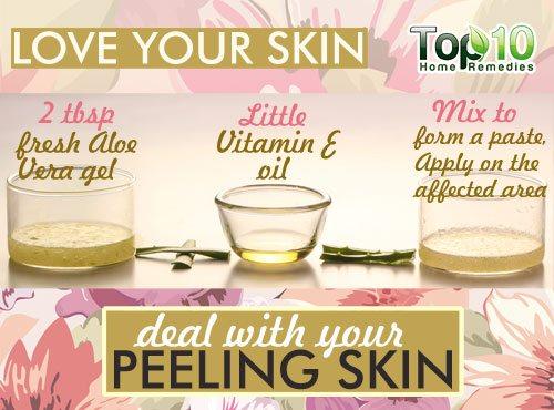 peeling skin home remedy