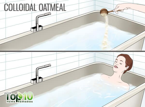 Use colloidal oatmeal for psoriasis