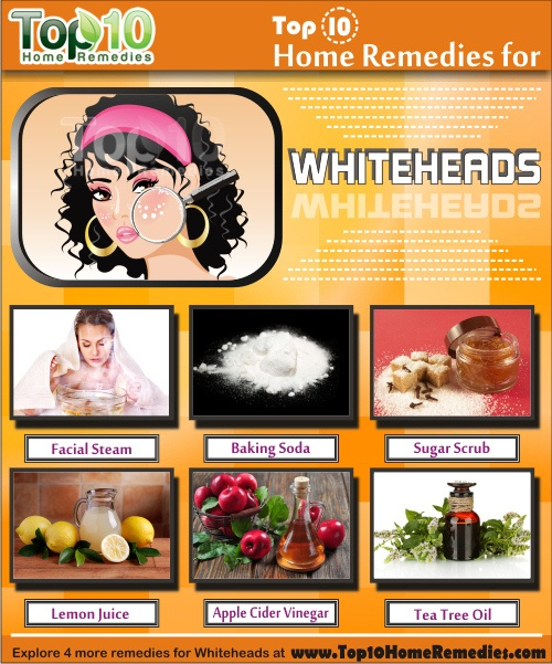 Herbal Facial For Whiteheads 85
