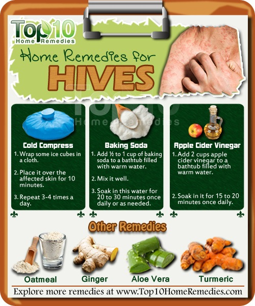 Hives home remedies