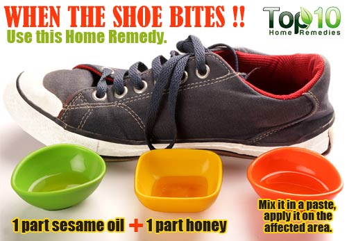 shoe bite home remedy