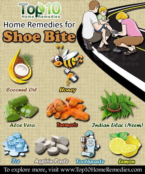 Home Remedies For Shoe Bites Top 10 Home Remedies