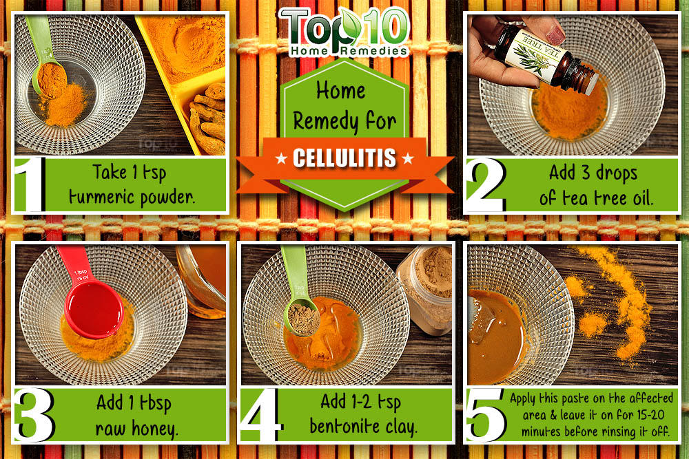 Home Remedies For Cellulitis Top Home Remedies - Natural home remedies for cellulitis