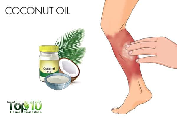coconut oil for cellulitis