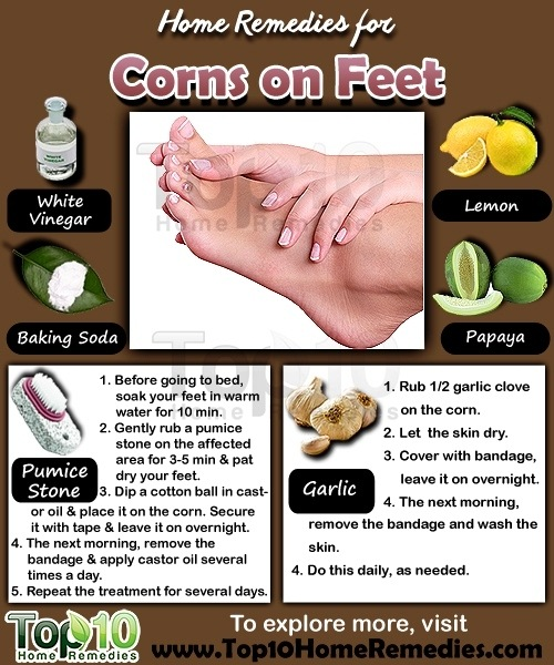 Corns on the foot home remedies