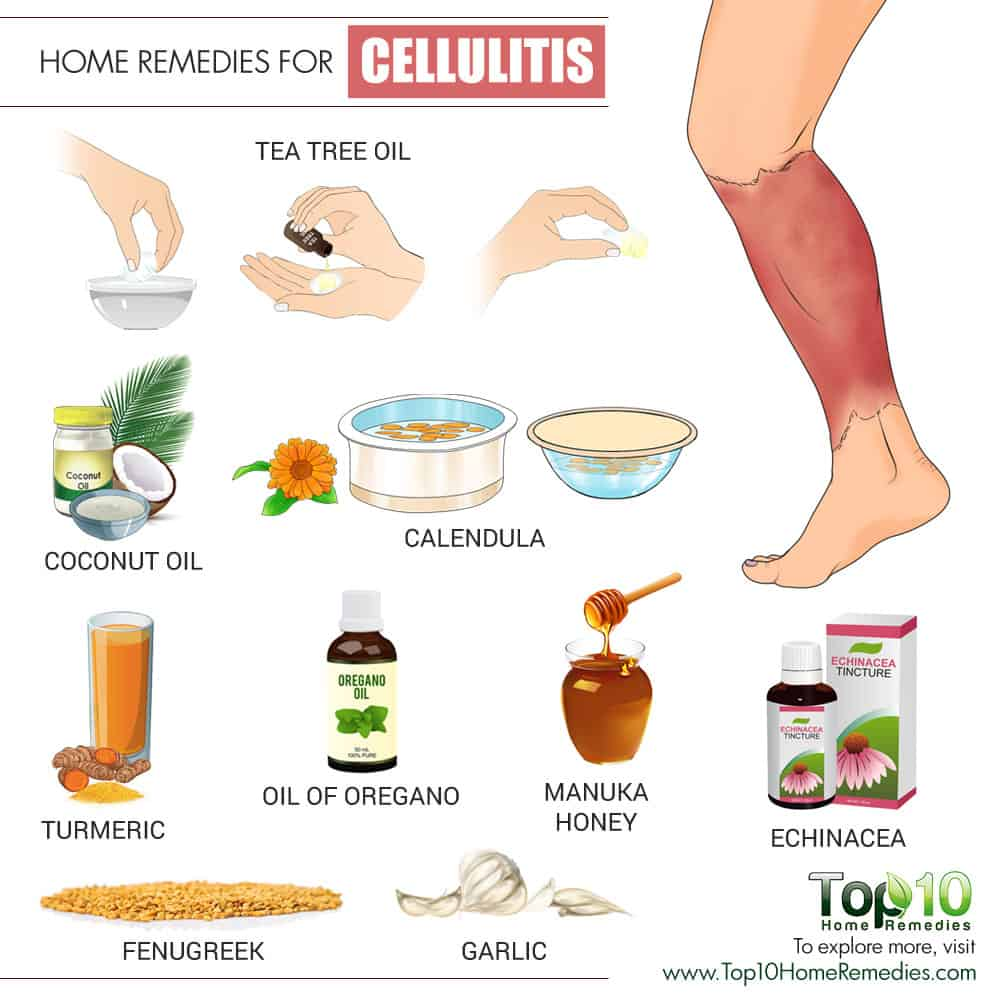 Foot Infection Home Remedies