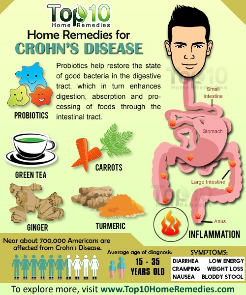 Home Remedies For Crohn S Disease Top 10 Home Remedies