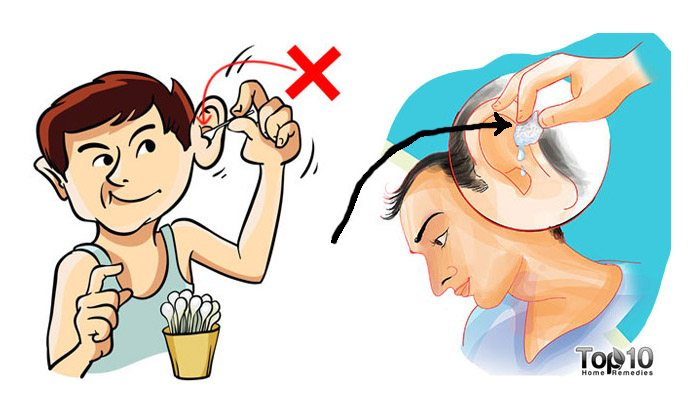 pictures How to Deep Clean Your Ears