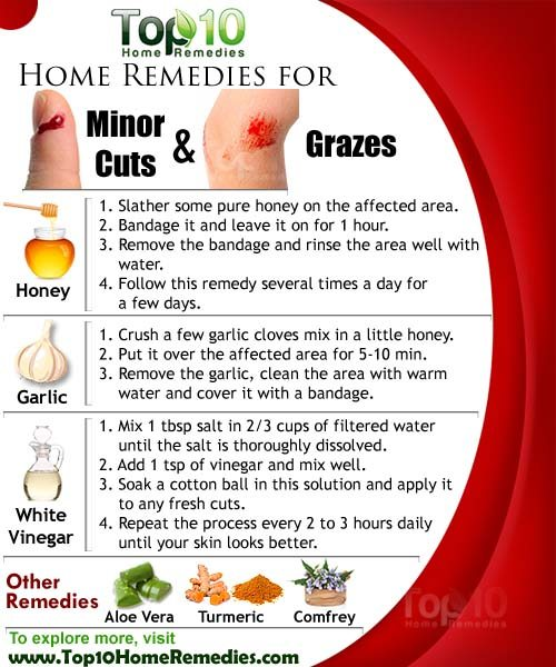 home remedies for minor cuts and grazes