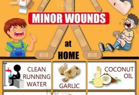 How to Heal Minor Wounds at Home