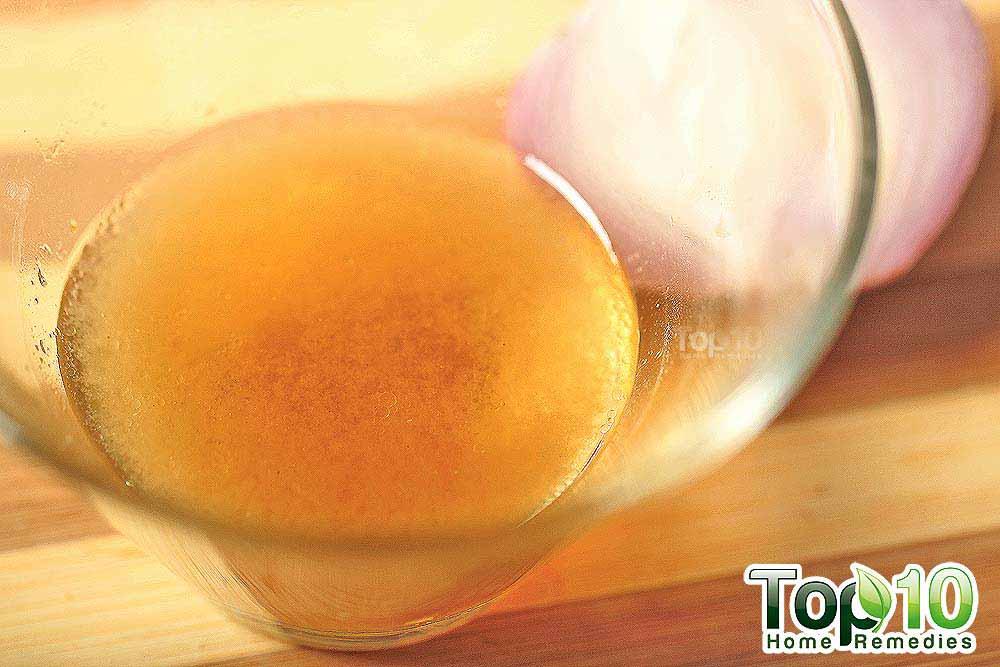 DIY Homemade Onion Juice and Honey Hair Loss Treatment | Top 10 ...