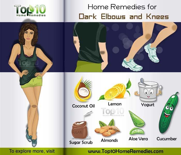 home remedies for dark elbow and knees