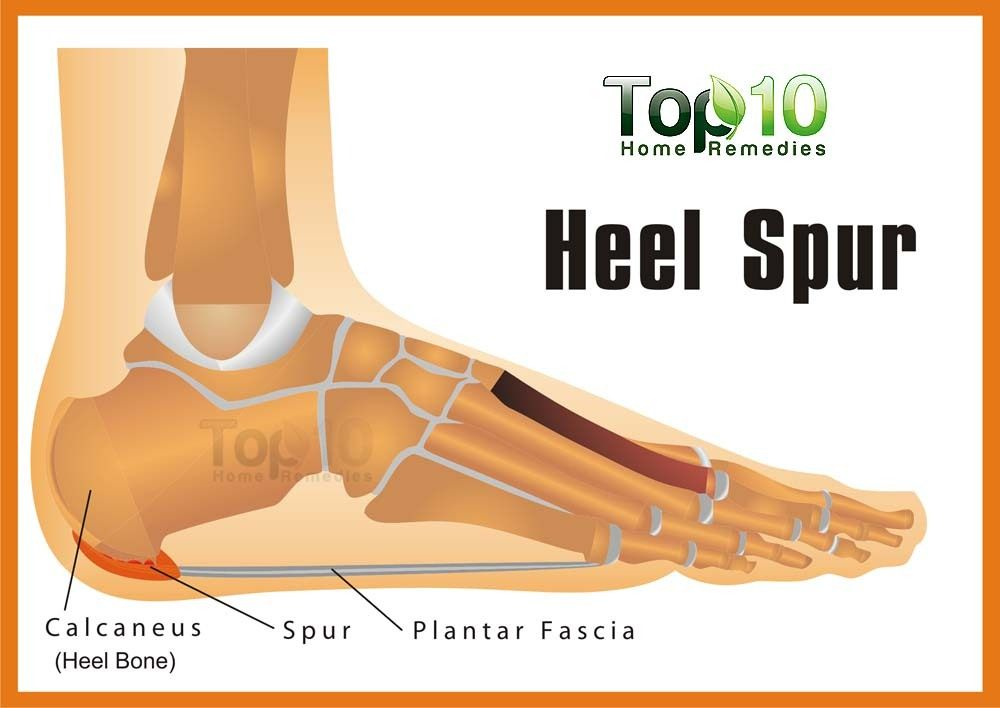 Natural Cure For Heel Spur Pain