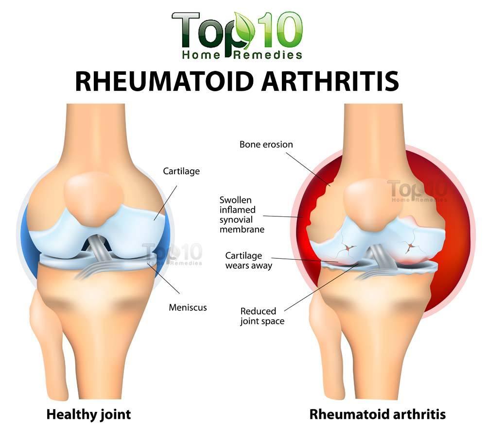 Rheumatoid arthritis diagram