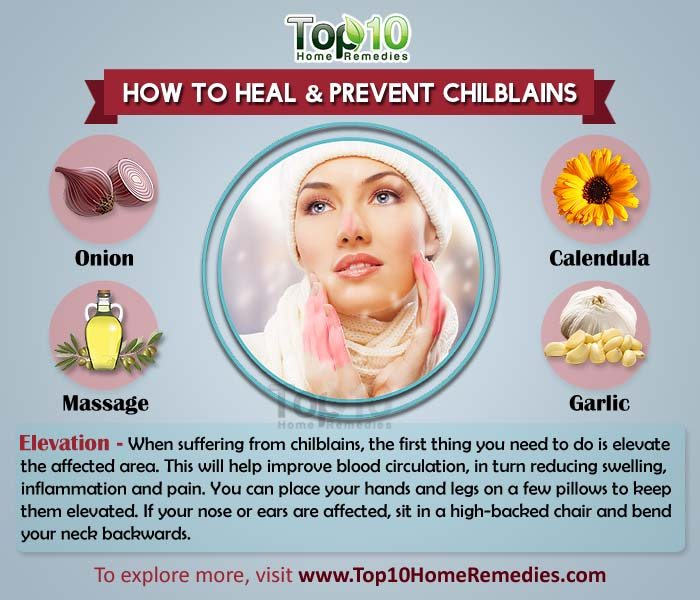 prevent and heal chilblains