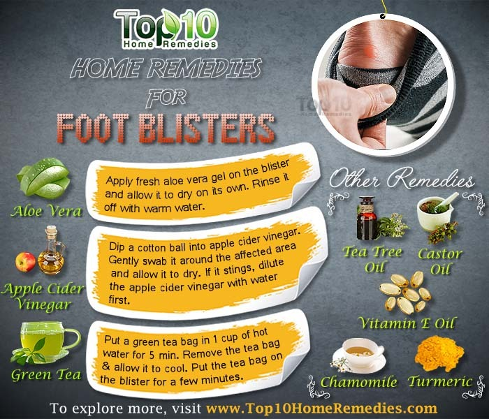 how to treat water blisters on foot