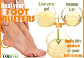 Home Remedies For Corns On Feet Page 3 Of 3 Top 10