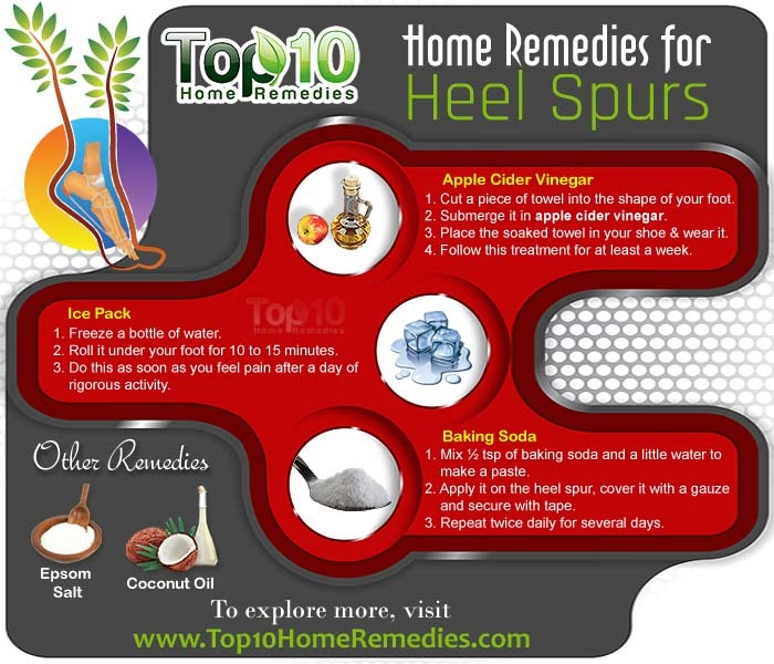 home remedies for heel spur