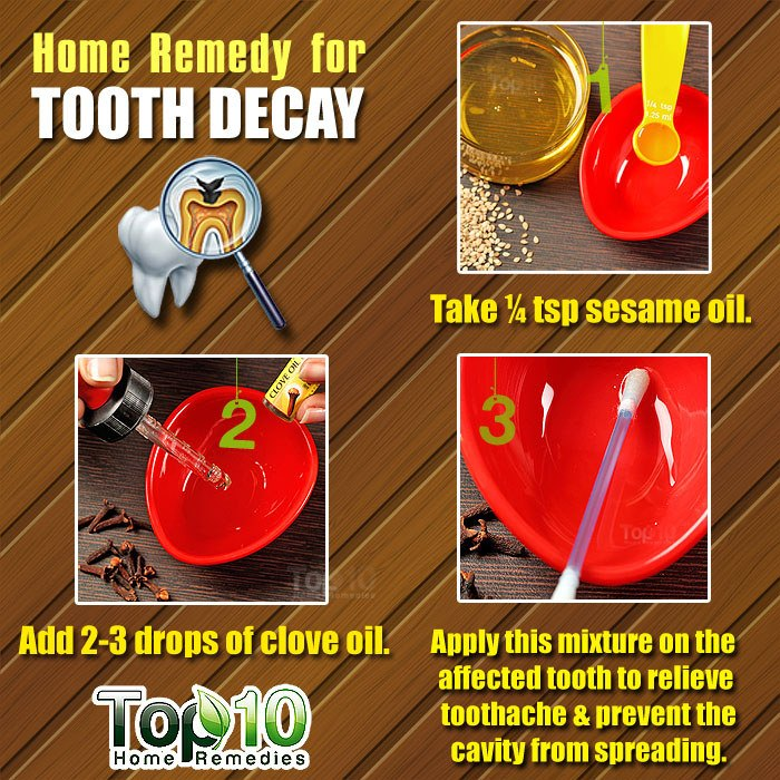 Tooth Decay and Cavities: Home Remedies and Prevention Tips | Top 10