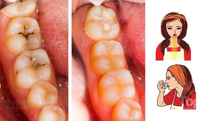 Kết quả hình ảnh cho Tooth Decay