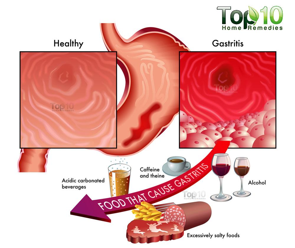 Home Remedies Gastritis