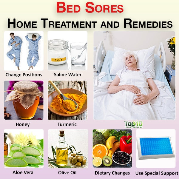 Bed sores home treatment and remedies