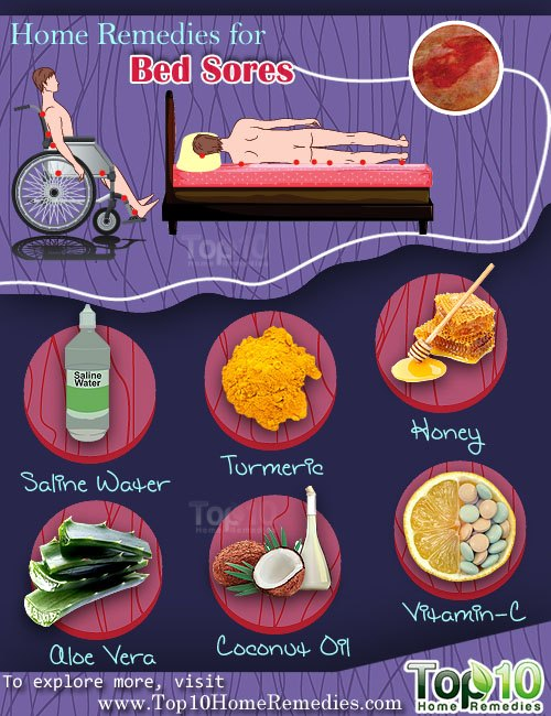 home remedies for bed sores | top 10 home remedies
