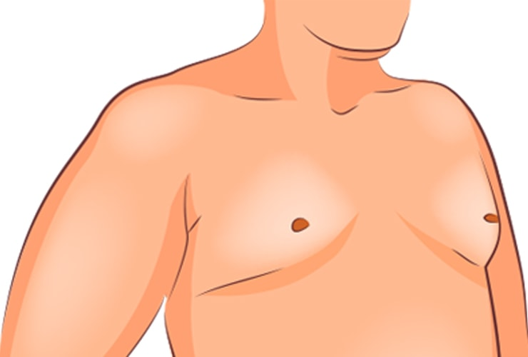 Home Remedies for Gynecomastia (Enlarged Breasts in Men) | Top 10 Home  Remedies