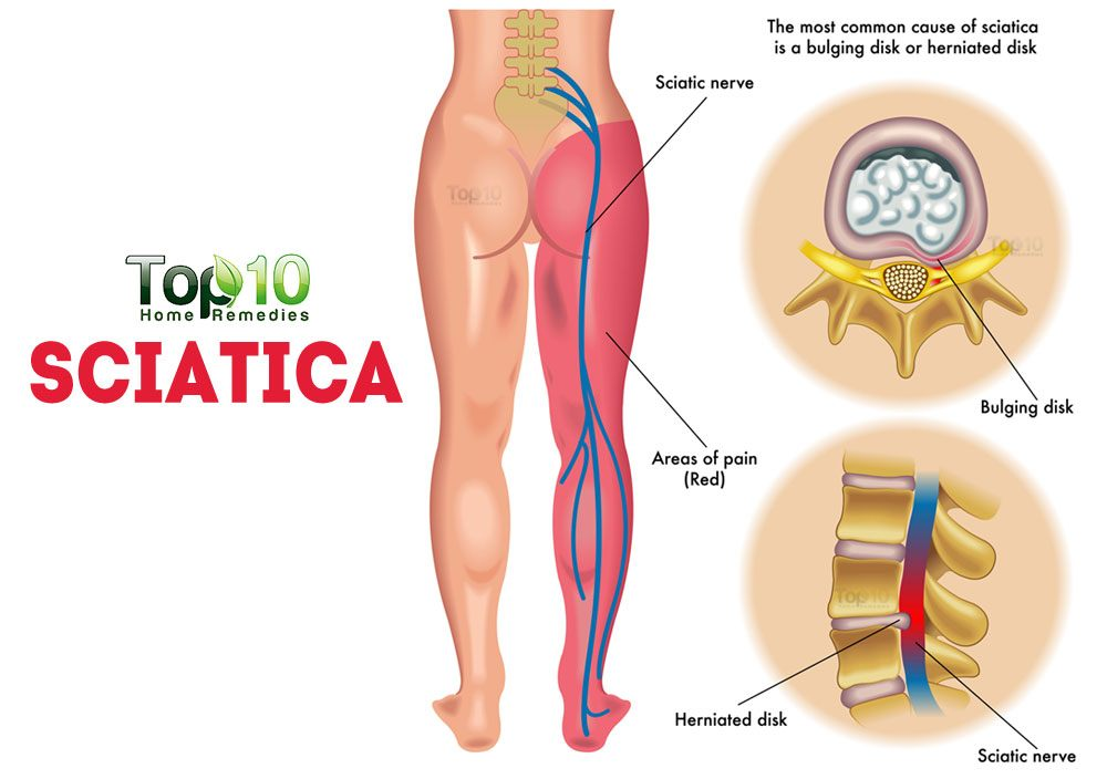 home remedies for sciatic nerve pain | top 10 home remedies, Human Body