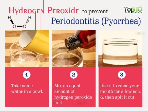 hydrogen peroxide for pyorrhea