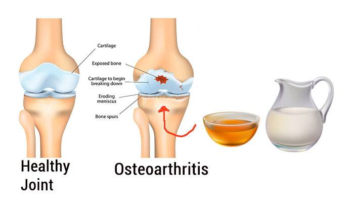 home remedies for osteoarthritis | top 10 home remedies, Skeleton
