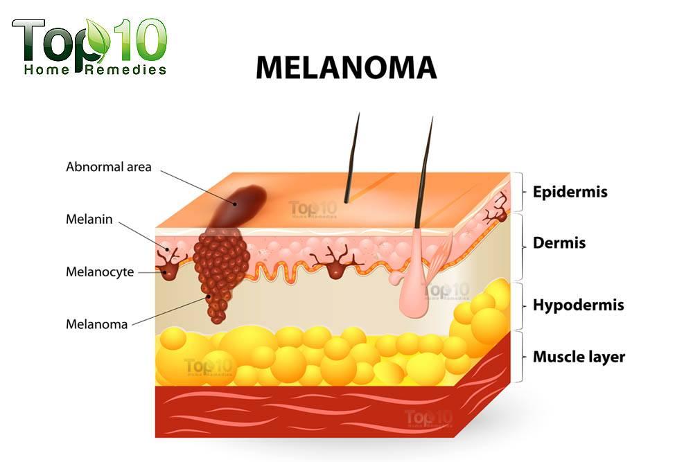 Viagra causes skin cancer