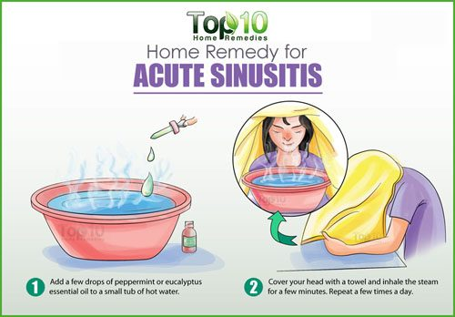 Home Remedies For Acute Sinusitis Top 10 Home Remedies
