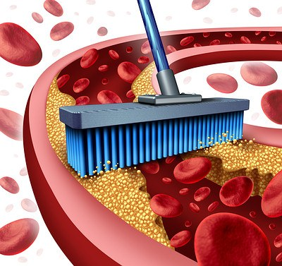 Cleaning Arteries-cholesterol-opt