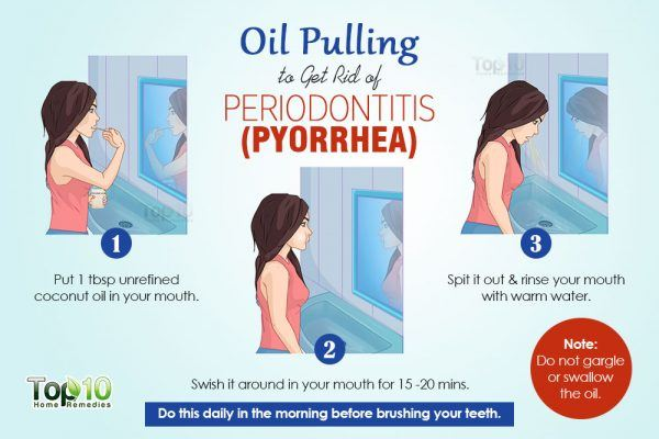 Oil pulling for Periodontitis (Pyorrhea)