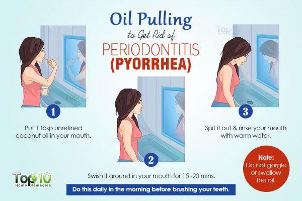 Oil pulling for Periodontitis (Pyorrhea)