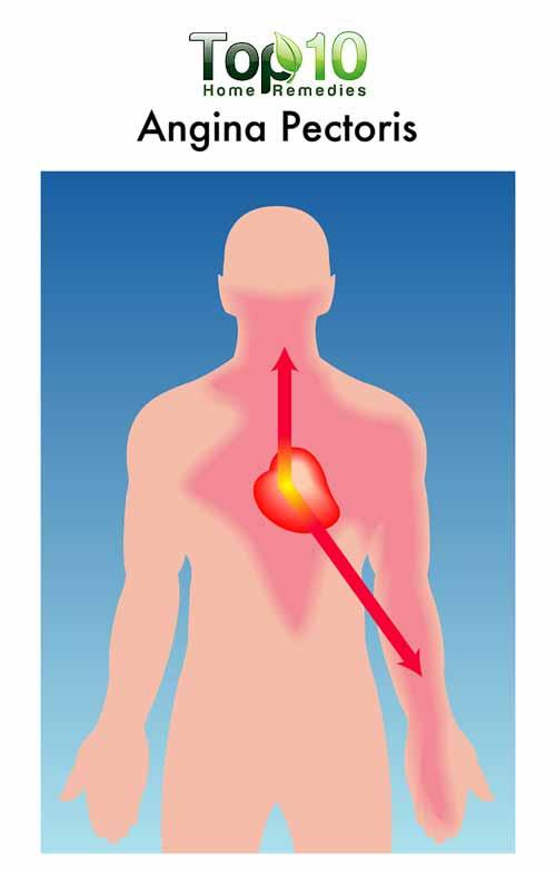 angina diagram