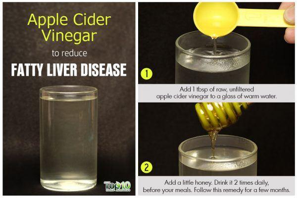 apple cider vinegar to treat fatty liver disease