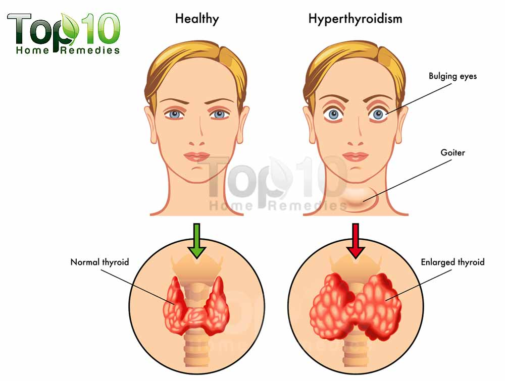 home remedies for hyperthyroidism | top 10 home remedies, Human body