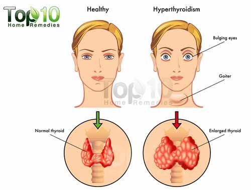 hyperthyroidism diagram